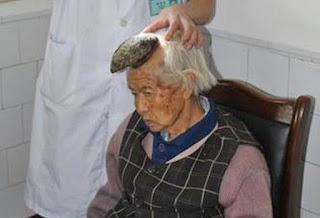 Wanita tua ini memiliki tanduk sepanjang 13 Cm