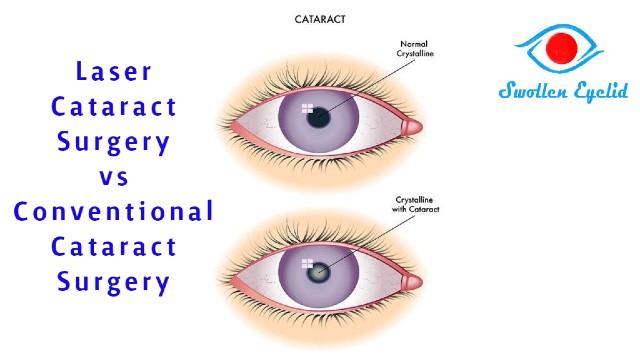laser-cataract-surgery-vs-conventional-cataract-surgery
