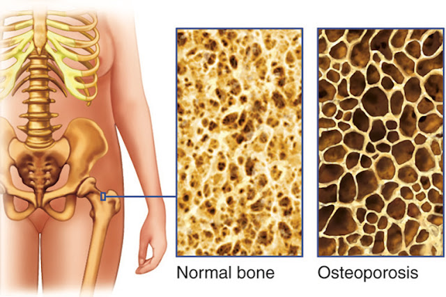 This Drink Damages Your Bones From Internal But People Keep On Consuming It