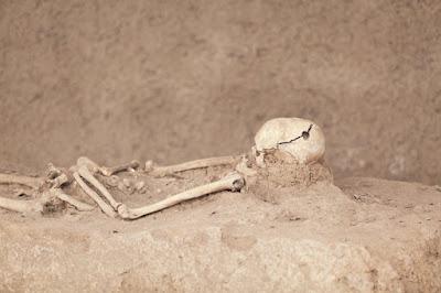 Προϊστορικές επεμβάσεις: Χιλιάδες χρόνια πριν, οι πρόγονοί μας άνοιγαν τρύπες στο κρανίο. Γιατί;