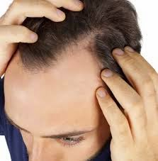 Hair Care Products & Anti Hair Loss Treatment