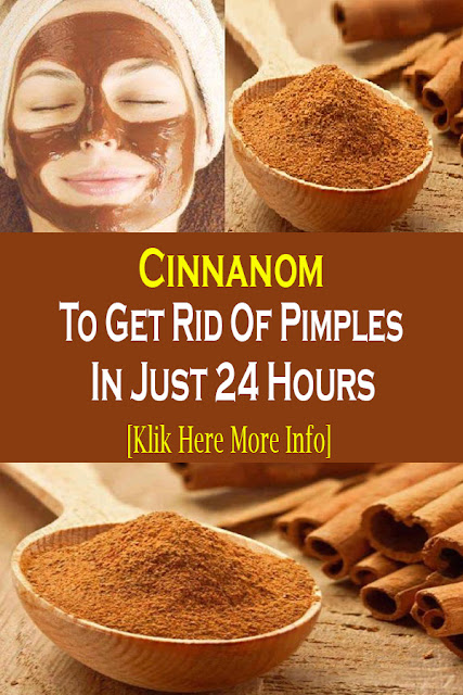 Cinnanom To Get Rid Of Pimples In Just 24 Hours