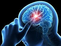 Tanda dan Gejala Terserang Penyakit Stroke Ringan, Nama Obat Tradisional Stroke Sebelah Kanan, obat tradisional untuk stroke ringan