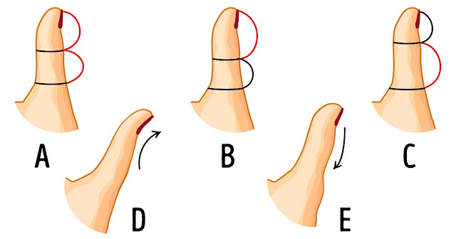 The Shape Of Your Thumb Reveals A Lot About Your Personality