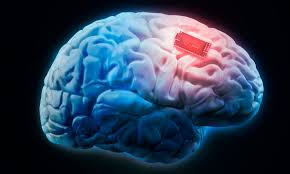 Brain and computer connect with Surgery