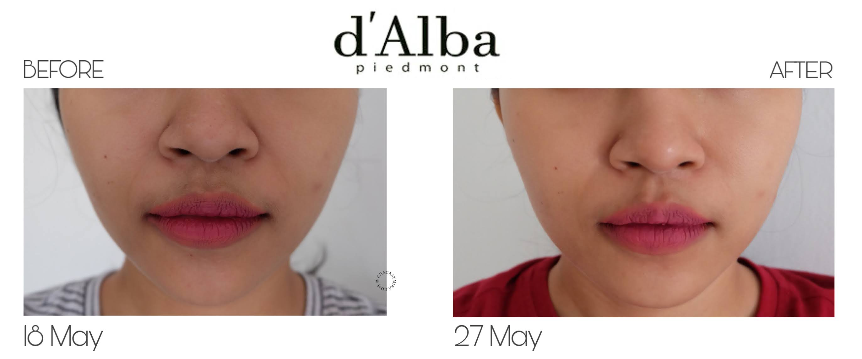 Before After d'Alba White Truffle First Spray Serum