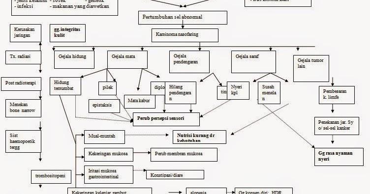 Kanker Nasofaring   Jenis, Penyebab, Gejala, Ciri Dan Pengobatannya