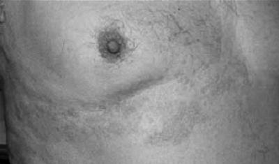 Foto ilustrasi pada soal UKMPPD (uji kompetensi mahasiswa program profesi dokter indonesia) soal pertanyaan UKDI. wujud kelainan kulit Varicella herpes zoster simpleks lesi kemerahan, vesikel unilateral sesuai dermatom