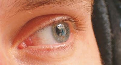 tentang maksiat mata