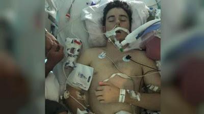 Remaja AS masuk rumah sakit karena terkena pneumonia setelah rutin menggunakan rokok elektrik