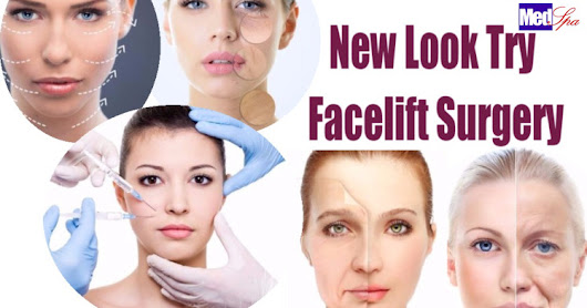 New look try Facelift Surgery or Treatment