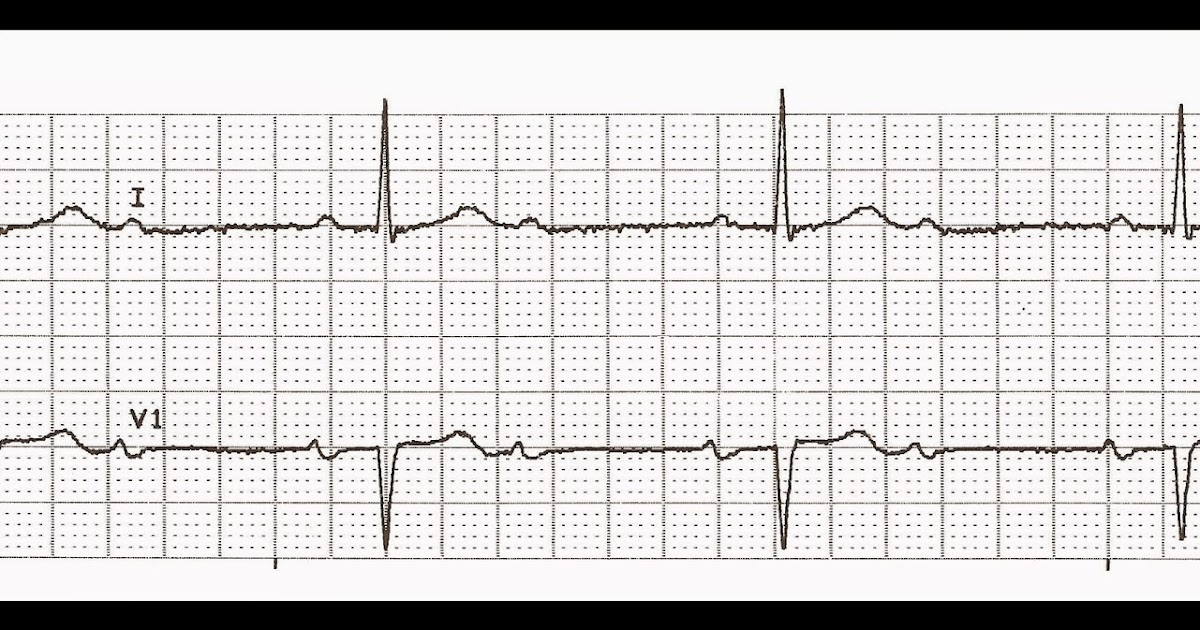 Float Nurse: Practice EKG Strips 410