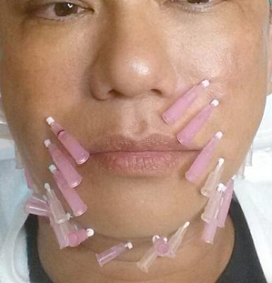 Thread lift procedure थ्रेड लिफ्ट उपचार प्रक्रिया को दिखाया जा रहा है कि उत्थान के लिए थ्रेड्स को त्वचा के नीचे कैसे रखा जाता है