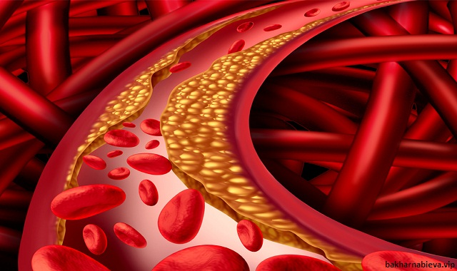 cholesterol-is-diet-real-cause