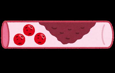 血栓のイラスト
