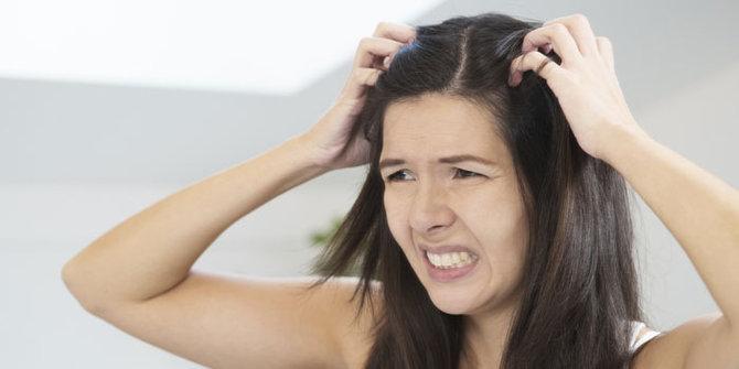 Cara Mengatasi Kulit Kepala Gatal, Berkerak Dan Mengelupas Seperti Ketombe
