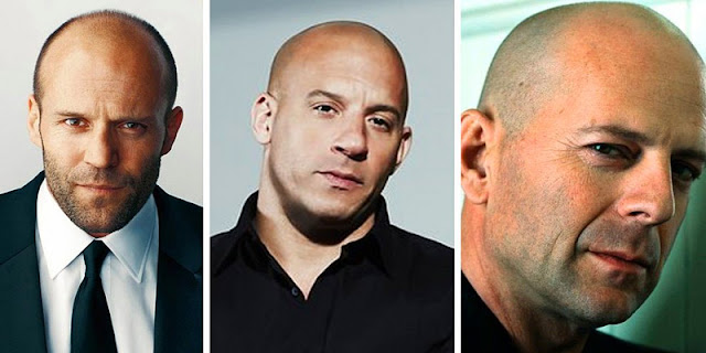 Bald Men Are More Masculine and Sexy, Study Shows