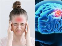 Mengobati Sakit Kepala Secara Alami Tanpa Konsumsi Obat Kimia - Sembuh Seketika