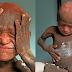 เด็ก 11 ขวบร่างกายค่อยๆเปลี่ยนเป็นหิน จากการป่วยเป็นโรคร้ายที่อาจส่งผลให้เขาเป็นรูปปั้น (ชมลิป)