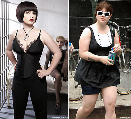 Celebrity Cosmetic SurgeonKelly Osbourne Weight Loss Surgery