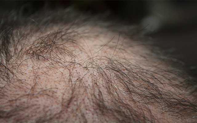 5 Foods That Help Prevent Hair Loss