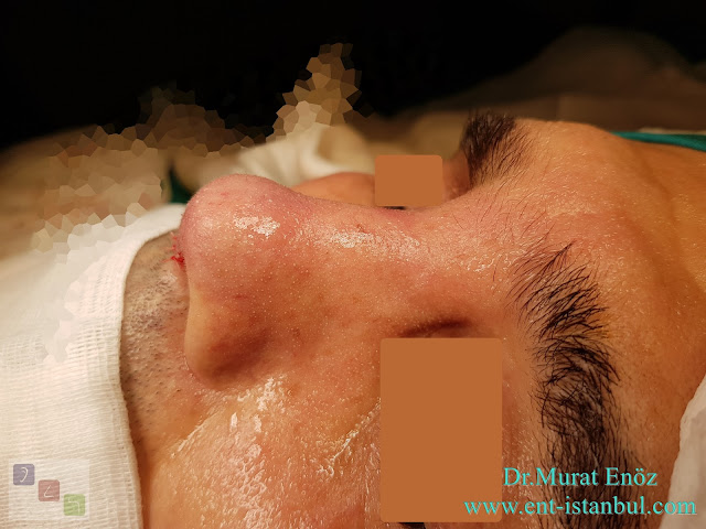 Male Rhinoplasty,Revision Rhinoplasty Operation With Rib Cartilage,Tertiary Revision Nose Aesthetic Surgery,Tertiary Revision Nose Job in Istanbul,