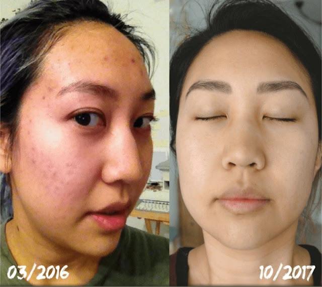 Comment préparer 3 toniques maison pour rafraîchir la peau