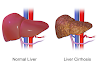 Liver disease symptoms and causes - othershealth