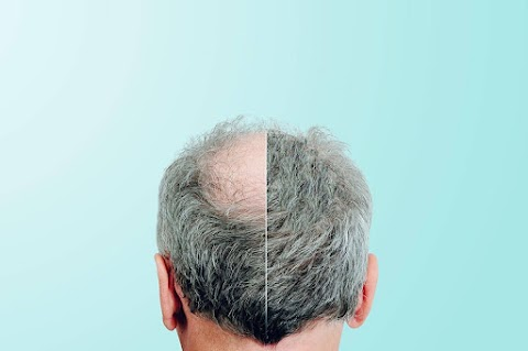 5 Things To Consider When Choosing A Hair Transplant Clinic
