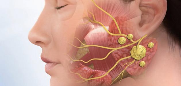 ما هو سرطان الغدة النكافية