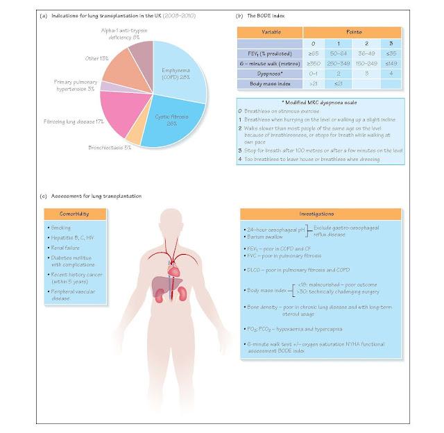 Assessment For Lung Transplantation