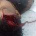 Adolescente do povoado Caneleiro que sofreu acidente de moto recebe alta do hospital