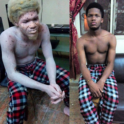 Makeup Artiste Transforms Nollywood Actor Daniel Egwede Into An Albino [See Photos]