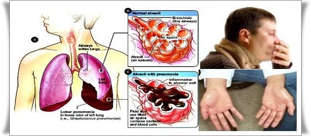 cara menyembuhkan paru-paru basah