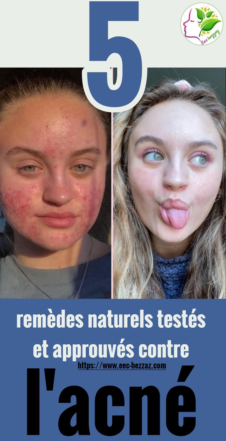 5 remèdes naturels testés et approuvés contre l'acné