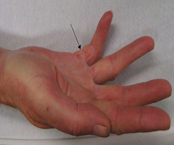 Palmistry: बहुत खास होती है हाथ की छोटी उंगली, बता सकती है आपके व्यक्तित्व का रहस्य