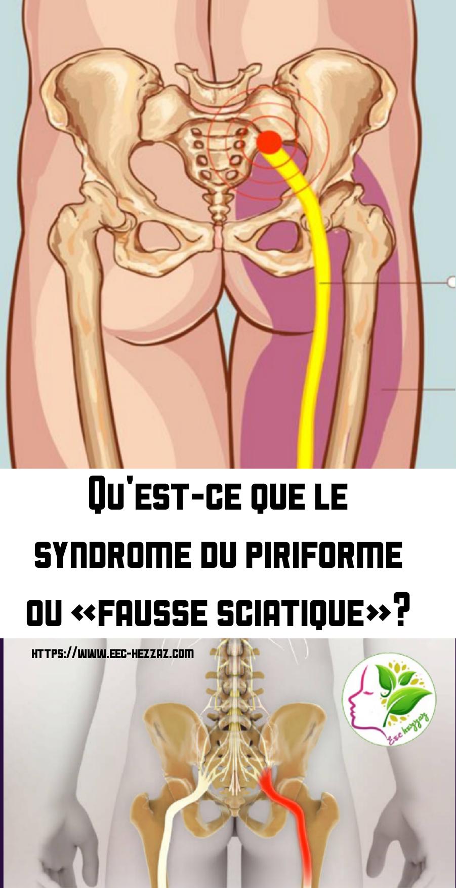 Qu'est-ce que le syndrome du piriforme ou «fausse sciatique»?