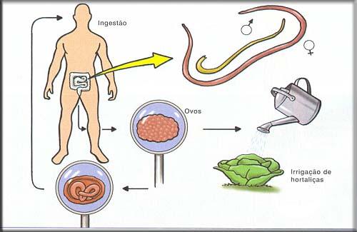Amebíase ou Infecção Amebiana