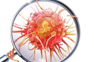 5 maneiras de eliminar as células cancerígenas