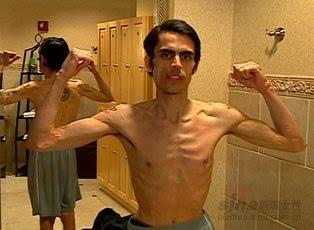 anorexia mirror male - photo #2
