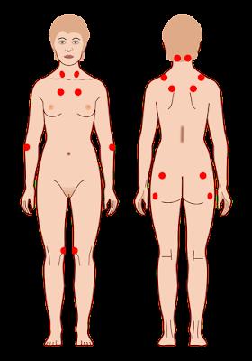 o que é tender point - 18 pontos da fibromialgia