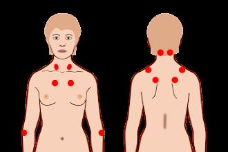 Fibromialgia: Conheça o melhor tratamento fisioterapêutico