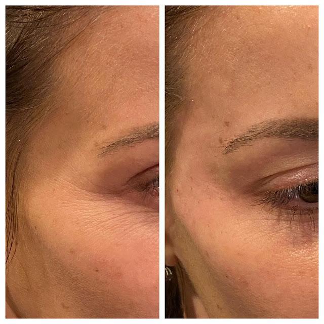 Ce sont les moyens connus pour traiter les rides du visage efficacement