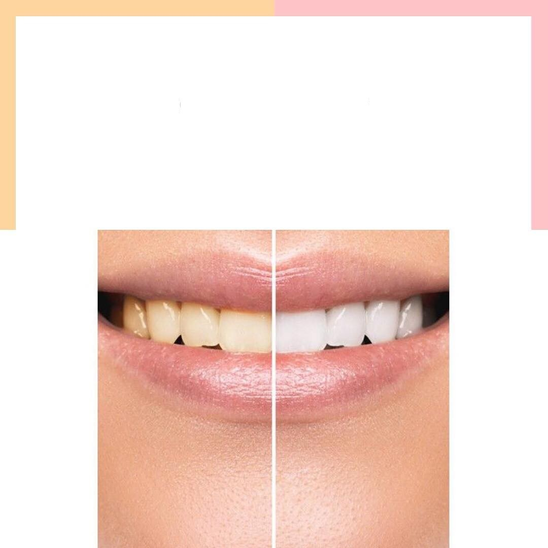 Conseils pour le blanchiment des dents