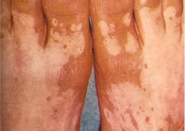 vitiligo-definition-types-social-stigma