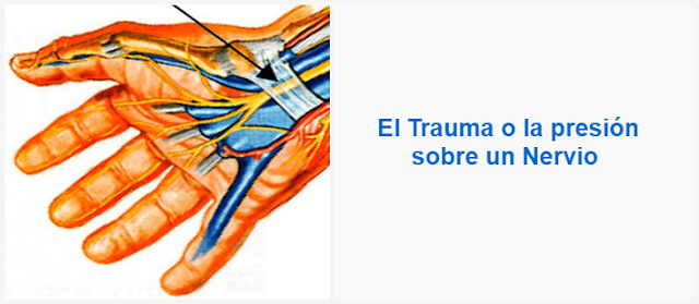 El trauma o la presión sobre un nervio