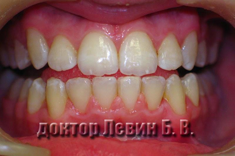 Через 24 месяца лечения сняты брекеты, фотография отображает результат лечения металлической брекет системой.