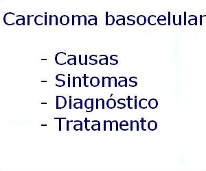 Carcinoma basocelular causas sintomas diagnóstico tratamento prevenção