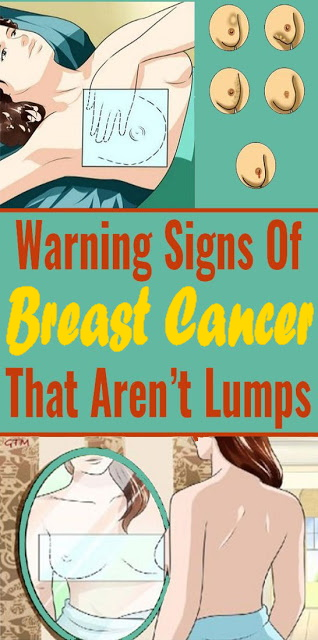 Early Warning Signs Of Breast Cancer No One Talks About (It's Not Just About Lumps)