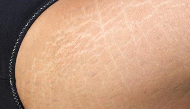 تخلصوا من علامات تمدد الجلد بهذه الوصفات الطبيعية!